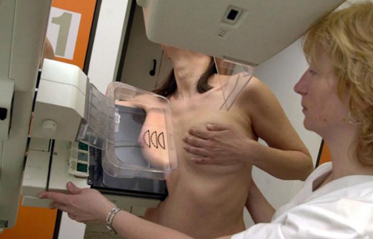 Service: Mammografie-Screening