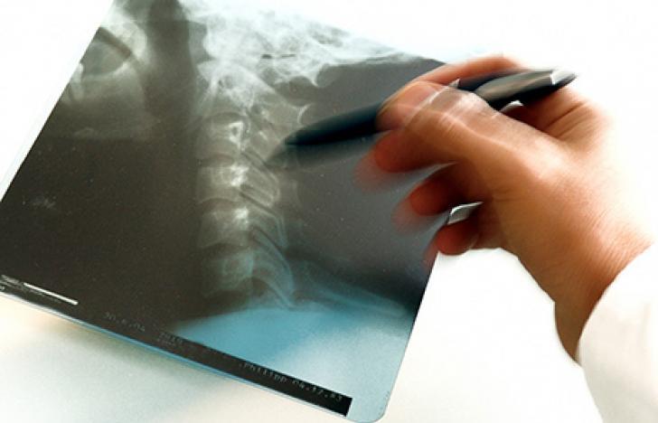 Ein neues Zeitalter für Röntgenlaser